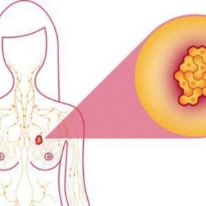 Adenos breast cancer: causes, symptoms, treatment