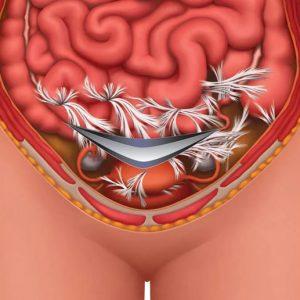 Adhesions pelvic