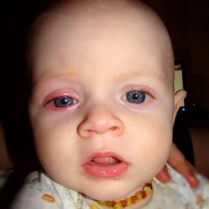 Allergic conjunctivitis in a child: symptoms and treatment