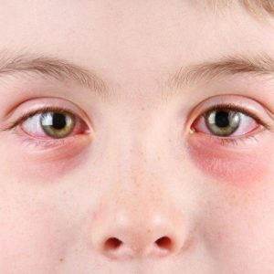 Allergic keratitis: symptoms and treatment in children and adults