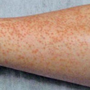Allergic vasculitis: symptoms and treatment