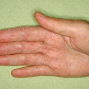 Atopic dermatitis: the symptoms and treatment of disease in adults