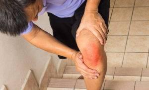 Проникновение инфекции в коленный сустав может происходить через микротрещины на кожном покрове