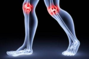 Causes of arthritis of the knee joint