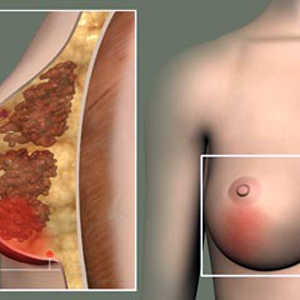 Fat necrosis of the breast: causes, symptoms, treatment