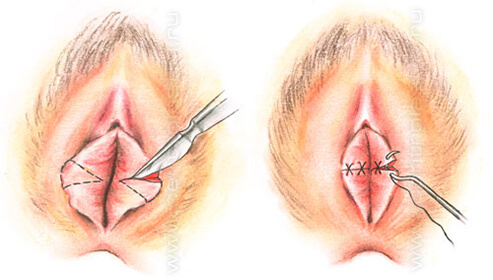 Diagnosis And Labiaplasty
