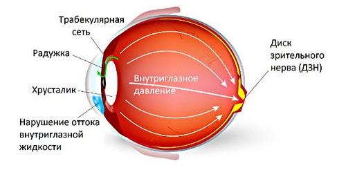 Increased intraocular pressure: symptoms, diagnosis, treatment