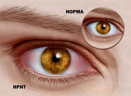 Iritis of the eye: symptoms and treatment