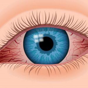 Iritis of the eye: symptoms and treatment