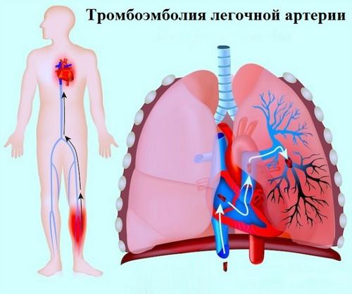 tromboemboliya-legochnoj-arterii