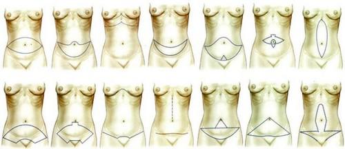 abdomenoplastika