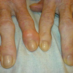 artrit_sustavov_palcev