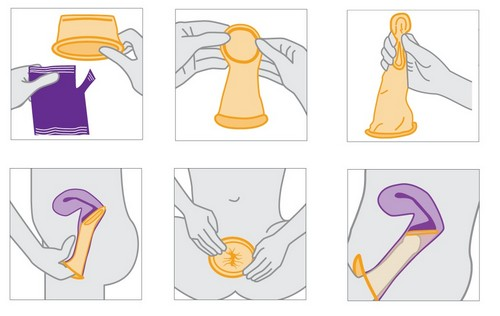 The female condom: how and why to use them, if there are male