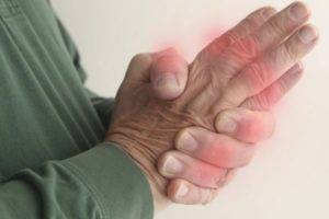 The symptoms of gouty arthritis