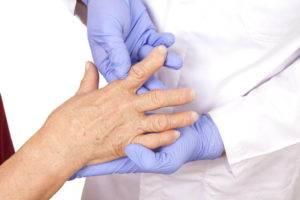 Treatment arthritis hands