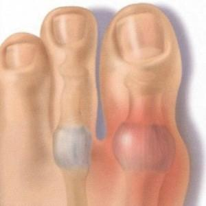 Types and treatment of articular syndrome in gout