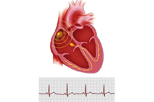 Types of bradycardia in children, causes and treatment