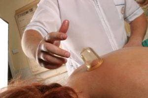 Vacuum cupping massage of the back