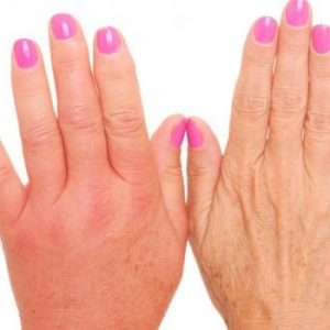 Why swollen fingers and how to treat it