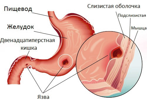 Aggravation of stomach ulcers