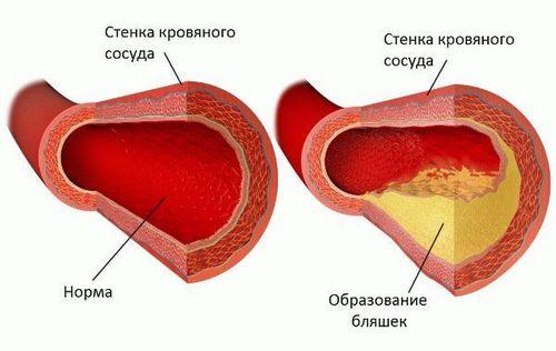 Before menstruation headache causes treatment