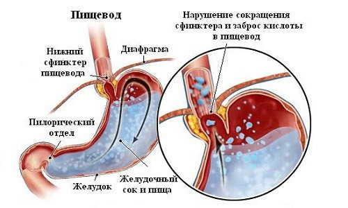 Causes of bile in stomach