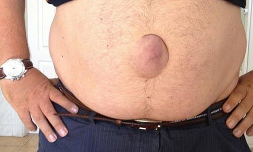 Causes, symptoms and treatment of umbilical hernia in men