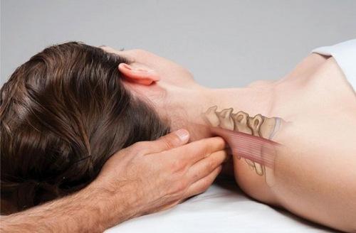 Cervicogenic headache causes, symptoms, treatment