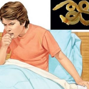 Cough at worms in children: causes and treatments