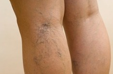 Exercise with varicose veins of the legs.