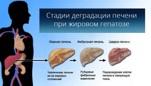 Purr-Views: BBQ (and Pancreatitis) Season  Fatty Pancreas