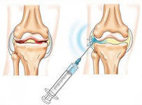 How do chondroprotectors in osteoarthritis joints