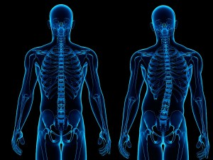 Manifestations and features torgovanov scoliosis