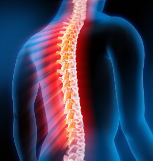 Manifestations and treatment of acute transverse myelitis spinal cord