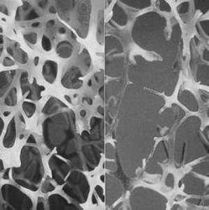 Osteoporosis at young age causes development