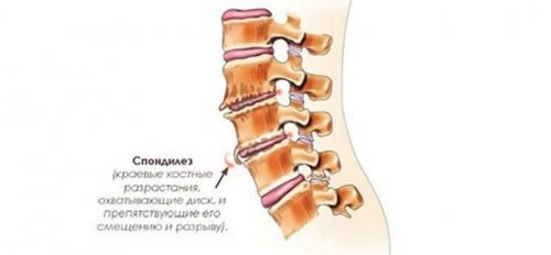 Pain head and neck pain causes treatment