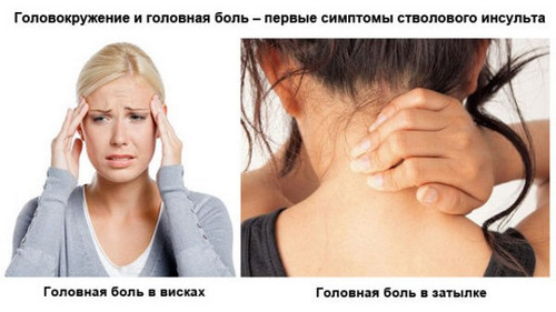 Pain in the nape and temples causes treatment