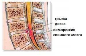 Парамедианная грыжа диска