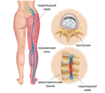 Sciatica: causes, symptoms and treatment of the disease