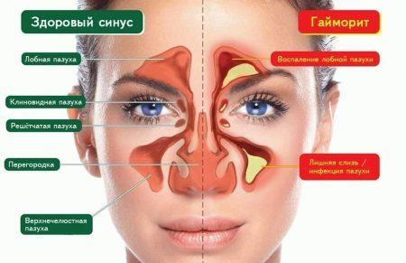 Sinusitis or migraine symptoms and treatment