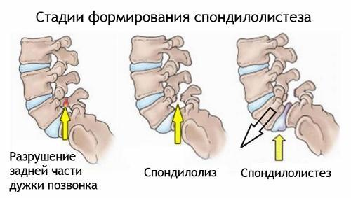 Spondylolysis of the spine is a defect of the vertebral arch