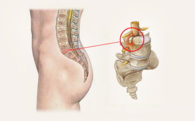 Symptoms and treatment of disc protrusion of the lumbar spine