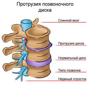 The main symptoms and treatment of disc protrusion C5 C6, C6 C7