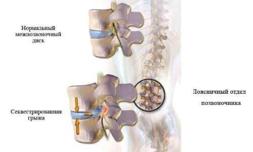 Секвестрированная грыжа позвоночника развивается вследствие нарушения целостности оболочки межпозвонкового диска (фиброзного кольца)