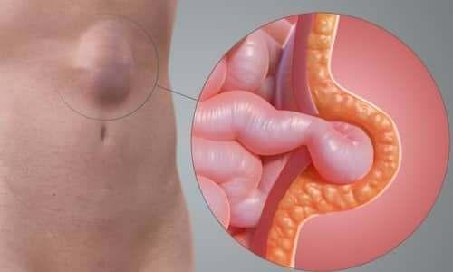 What is an abdominal hernia?