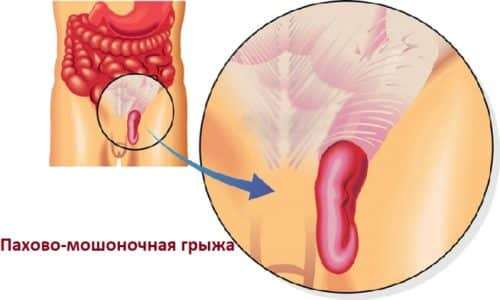 What is an inguinal scrotal hernia?