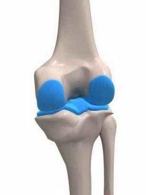 What is arthroplasty?