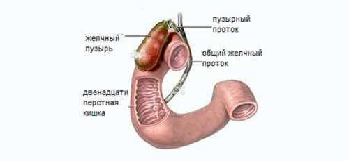 Acute cholecystitis Diagnosis and start treatment