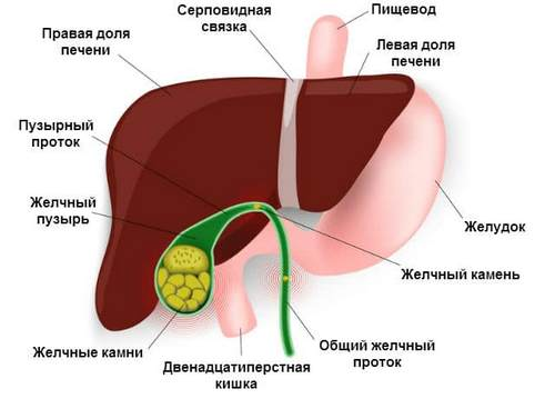 Cholecystitis, symptoms, treatment