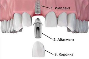 Dental implants as a bet, as they serve